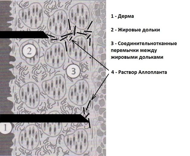 Антиптоз6
